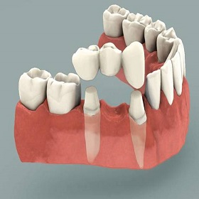 fifty five a cosmetic crowns