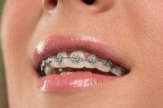 fifty five a traditional metal braces