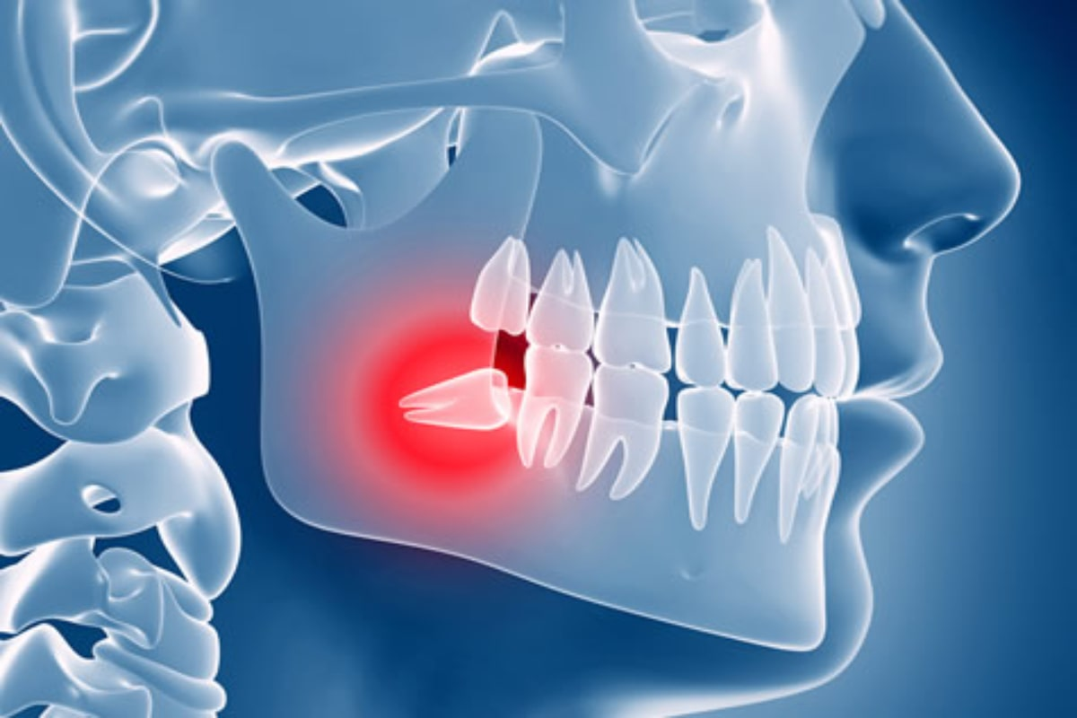 fifty five a oral surgery