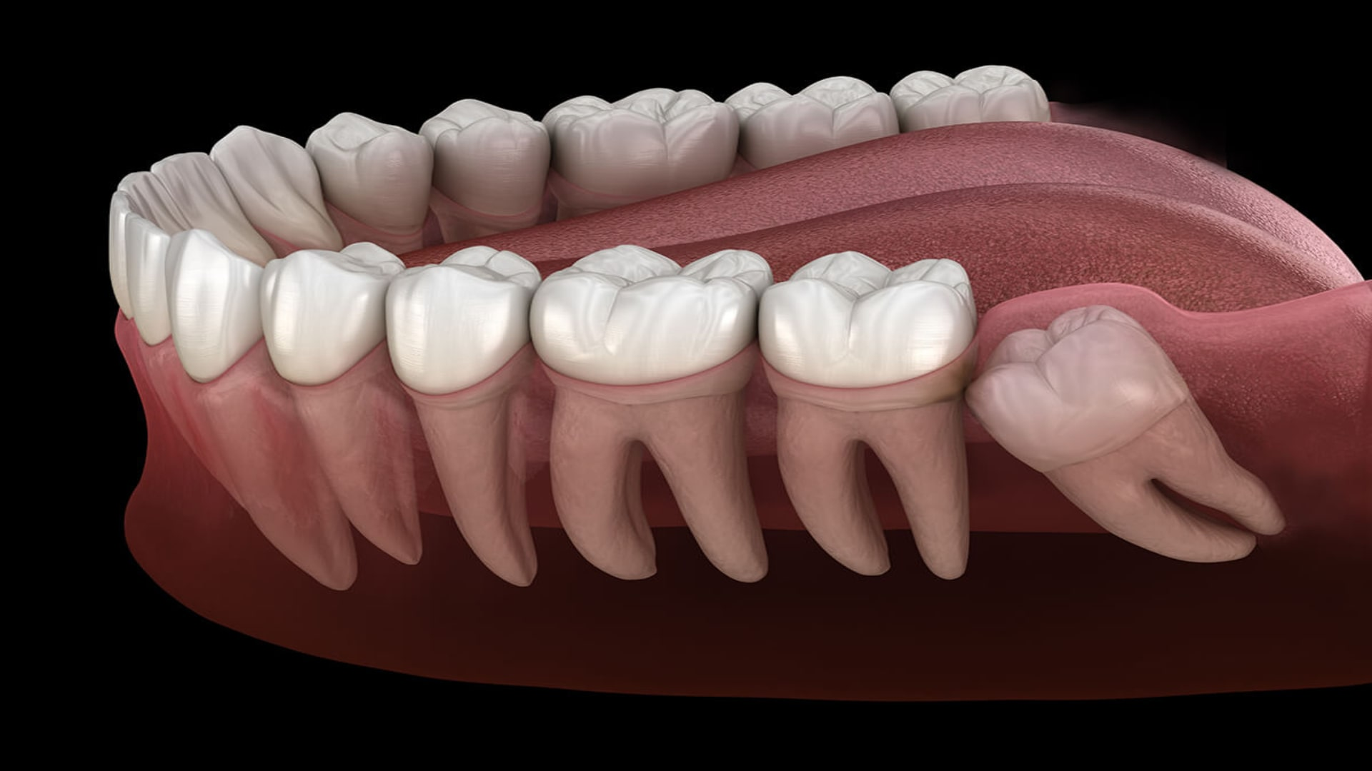 london wisdom tooth removal
